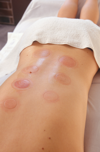 Photos show two different patients receiving cupping therapy — during and right after the treatment. The technique involves using a cup to create a vacuum on the skin to pull it upwards, away from the body, and suspend it. It's safe and offers no pain, say practitioners.