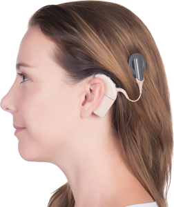 Cochlear impant