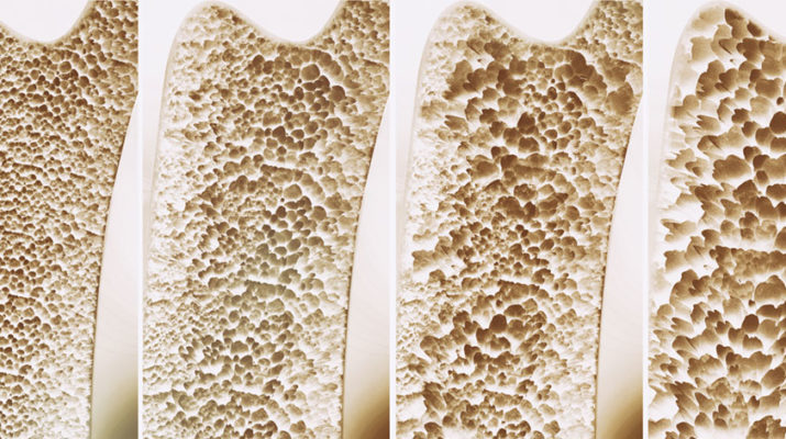 A 3-D rendering showing the progression of osteoporosis.